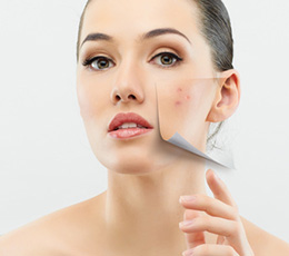Acne Facials Asheville